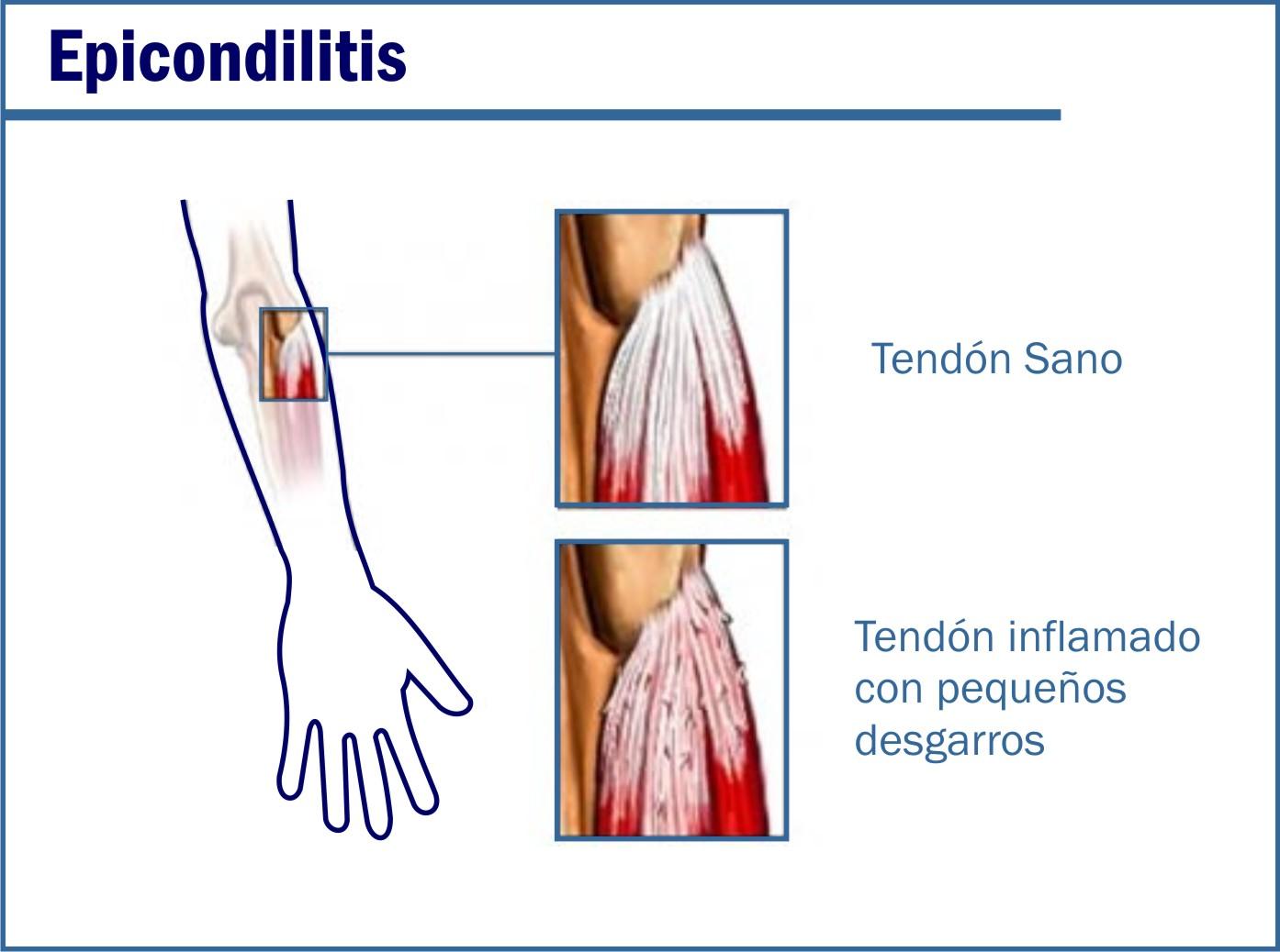 Las lesiones más frecuentes en el Pádel